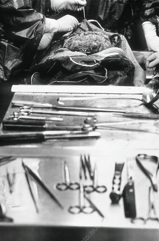M8760053-Autopsy-examination.jpg